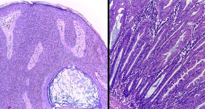 img-top-anatomiapatologica1